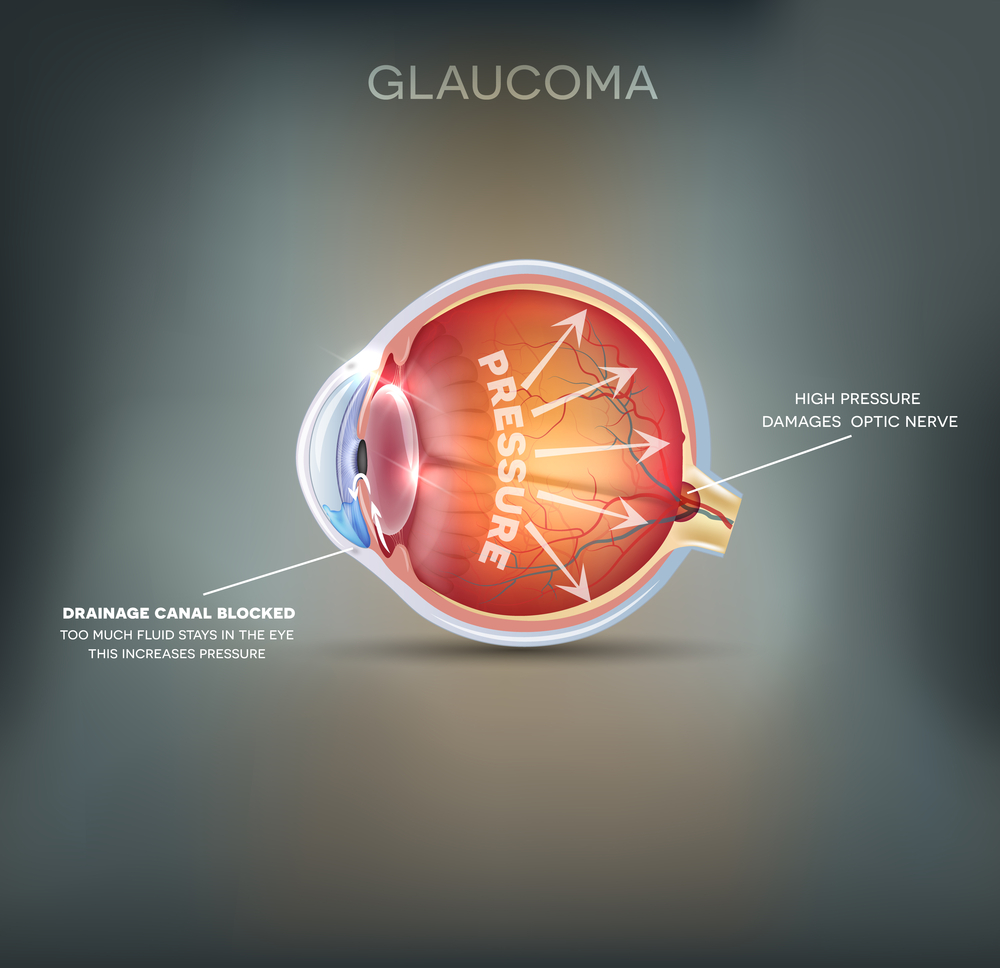 glaucoma-eye-and-laser-fort-collins